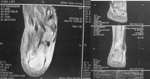Resonancia magnética de tobillos con edema en la región posterior del calcáneo, engrosamiento y aumento de la densidad en la inserción del tendón de Aquiles izquierdo, con rotura parcial, peritendinitis asociada y bursitis retrocalcánea.