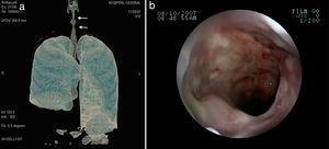 La tomografía axial computarizada pulmonar muestra: a)vidrio esmerilado generalizado, nódulos cavitados y consolidación cavitada, y b)neumonía cavitada en el segmento superior de lóbulo inferior derecho y nódulos no cavitados en el lóbulo inferior izquierdo.
