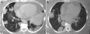 a y b)Nódulos y masas en lóbulo inferior derecho y consolidación en periferia de lóbulo inferior izquierdo; el análisis histopatológico mostró combinación de vasculitis necrosante granulomatosa y neumonía organizada.