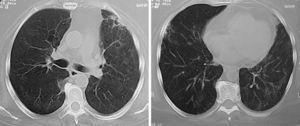 a y b)Mismo paciente de figura 4 tras 4meses de tratamiento con inmunomoduladores. Se observa la desaparición de las masas y de los nódulos; solo persisten bandas fibrosas y parches focales de fibrosis.