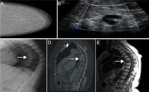 A. mamografía BIRADS I. B. Adenopatía con engrosamiento cortical sospechoso de metástasis. C-E. Se objetiva fractura vertebral de D7, con patrón escleroso en los cortes sagitales de la TC y señales hipointensas en las imágenes de RM potenciadas en T1.