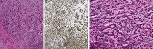A. Hematoxilina-eosina (4×); se observan células tumorales de núcleos hipercromáticos. B. En la tinción de inmunohistoquímica (4×) las células conservan la expresión de E-cadherina, rodeadas de un estroma desmoplásico. C. A mayor aumento (20×) se distinguen en otras áreas de cilindro formación de esbozos de glándulas que infiltran el intersticio, el cual es fibroso y con reacción inflamatoria.