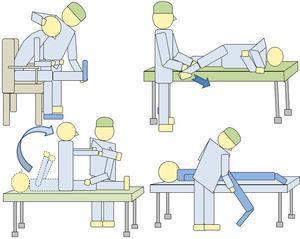 Ilustración mostrando diferentes formas de realizar maniobras de estiramiento radicular. Su finalidad es detectar discrepancias exploratorias.