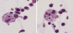 Líquido ascítico. Se observan macrófagos con glóbulos rojos en su interior.