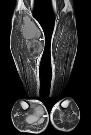 RM. Imágenes axial y coronal en T1. Masa bien circunscrita (flechas). Aumento de la intensidad de señal compatible con presencia subaguda de productos sanguíneos.