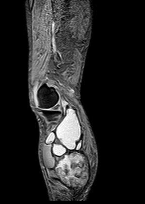 RM. Imagen STIR sagital. El hematoma muestra aumento difuso de la intensidad de la señal.