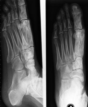 Radiografía lateral y anteroposterior de pie izquierdo con engrosamiento del metatarsiano y falanges del primer dedo derecho.