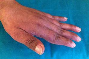 Mano izquierda de la paciente afecta con artropatía de Jaccoud, donde se aprecia la desviación cubital del 5.° dedo y las deformidades en cuello de cisne de los dedos 2.° al 5.°.