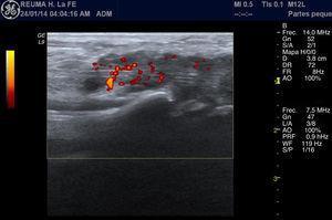 Corte longitudinal palmar de la articulación radiocarpiana, en el que se aprecian los tendones flexores de la muñeca. Destaca un engrosamiento hipoecoico de la vaina sinovial de los tendones que se corresponde con una tenosinovitis con hipertrofia sinovial marcada y señal Doppler patológica, que muestra un aumento de la vascularización normal.