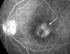 Fluorangiografía de retina (fase tardía) de ojo izquierdo de paciente con edema macular quístico crónico (flecha) por uveítis crónica secundaria a AIJ.