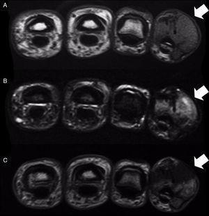 Cortes axiales de RM, observándose una lesión hipointensa en T1 (A) e hiperintensa en T2 (B), con discreta captación tras la administración de contraste (C).