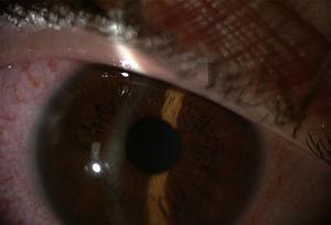 Uveítis anterior con inyección periquerática.