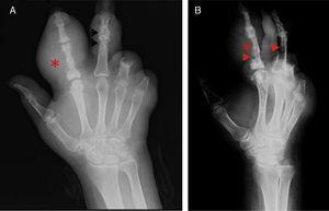 A) Radiografía dorsopalmar de mano izquierda. B) Radiografía lateral de mano izquierda. En ambas se aprecia aumento de volumen en tejidos blandos en segundo y tercer dedo correspondientes con tofo (*), en los tejidos óseos resalta la presencia de erosiones en borde colgante (flechas), con pérdida de espacio articular.