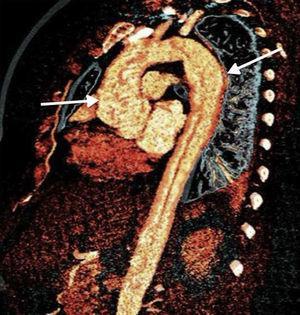 Reconstrucción aórtica mediante resonancia magnética destacando zona de dilatación aórtica en el cayado. Paciente con sialoadenitis por IgG4 con afección aórtica.