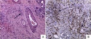 A) Glándula lagrimal teñida con hematoxilina y eosina, 40×: infiltración de células plasmáticas periglandular con distorsión glandular. B) Inmunohistoquímica de glándula lacrimal IgG4+, índice IgG/IgG4 >40%.