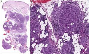 A) HE ×40: múltiples granulomas desnudos predominantemente en el tejido celular subcutáneo. B) HE ×400: granulomas ocupando principalmente los lobulillos con algunas células de Langerhans aisladas (flecha).