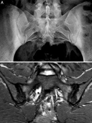 Caso 2. A) Radiografía con marcada esclerosis bilateral en ambos márgenes óseos de las articulaciones sacroiliacas. B) RM de sacroiliacas que muestra esclerosis, erosiones y edema óseo demostrativo de sacroilitis activa.