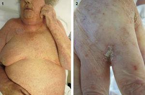 1) Placas hiperqueratósicas y numerosas lesiones lineales distribuidas en tronco, con predominio en área facial y mamas. 2) Placas hiperqueratósicas y lesiones lineales en dorso de manos, predominando en pliegues interdigitales.