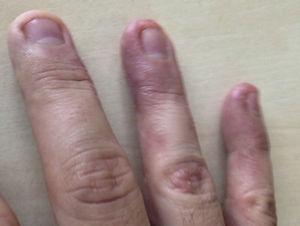 Lesiones eccematosas con fisuras cutáneas en zona externa de pulpejos de 3.°, 4.° y 5.° dedos de la mano dominante. Se observa eritema con alguna vesícula, descamación y fisuras cutáneas dolorosas.