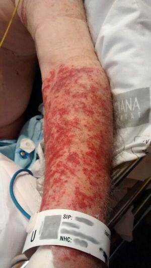Imagen lesión brazo bajo la marca del manguito de presión.