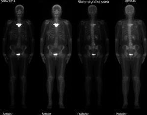 Gammagrafía. Lesión blástica difusa en manubrio esternal.