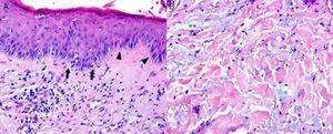 A) Epidermis con degeneración vacuolar de la basal (asterisco), queratinocitos necróticos aislados (flecha) e infiltrado linfocitario discreto asociado. Se observa verticalización de las células de la capa basal (cabeza de flecha), rasgo histológico asociado con frecuencia a eritema multiforme. Infiltrados linfoplasmocitarios y melanófagos en dermis papilar. B) Dermis reticular con infiltración intersticial de mucina ácida (asterisco).