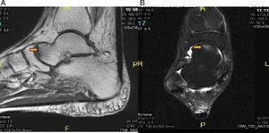 A) RM corte sagital en T1, que muestra lesión focal a nivel de la cabeza astragalina con edema difuso del resto del hueso del pie derecho. B) RM axial del pie en secuencia T2, saturación grasa mostrando: lesión focal a nivel de la cabeza astragalina y derrame articular a nivel de articulación tibio astragalina anterior y posterior del pie derecho.