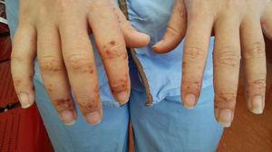 Lesiones vesículo-papulosas difusas en región dorsal de manos.