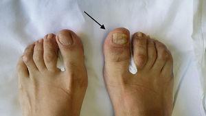 Exploración física de ambos pies. Puede verse, en el primer dedo del pie derecho, onicodistrofia, dactilitis y eritema periungueal (flecha).