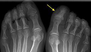 Radiografía anteroposterior de ambos pies. La falange distal del primer dedo del pie derecho muestra una esclerosis global con apariencia de «marfil» (flecha).