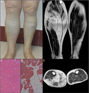 A) Aumento del volumen de la pierna derecha. B) y C) RMN longitudinal y transversal de ambos miembros inferiores. D) Biopsia muscular del paciente (hemotoxilina-eosina ×10). E) Comparativa con una biopsia muscular normal de gemelo interno (×10).