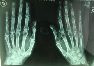 Se visualiza desmineralización ósea en carpo y mano izquierda.