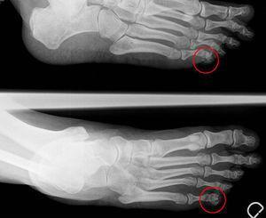 En la radiografía simple se observa una pequeña calcificación en zona lateral de la quinta falange distal.