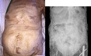 Calcinosis universalis en abdomen y pelvis.