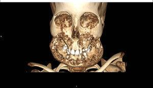3D-reconstruction of patient lesions.