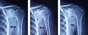 Las radiografías de hombro en posiciones AP verdadera, rotación externa y rotación interna demuestran la presencia de múltiples cuerpos calcificados de tamaño uniforme, distribuidas en toda la articulación glenohumeral izquierda, así como en el receso subescapular y el canal del tendón bicipital.
