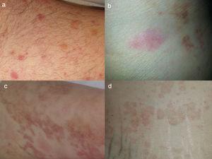 Urticaria con vasculitis. Los 4 pacientes tienen biopsia que confirma la vasculitis leucocitoclástica. Nótese la presencia de lesiones urticariformes agudas y lesiones en resolución con púrpura (a-d).