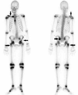 Gammagrafía ósea que muestra múltiples zonas de captación (flechas).