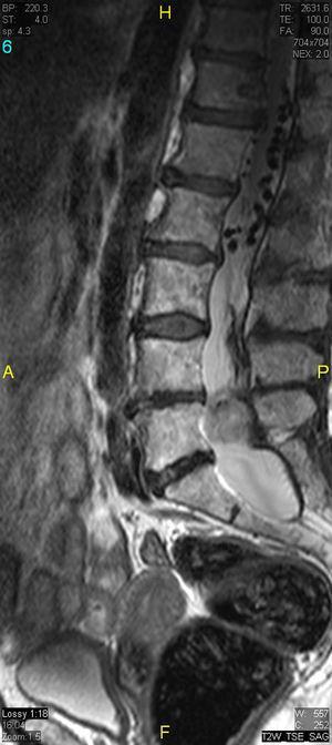 Sagital T2 TSE. Canal raquídeo amplio con dilatación del fondo de saco dural. Lesión expansiva intradural a la altura de L5 que ocupa la totalidad del canal. Por encima se identifican «vacíos de flujo» correspondientes a estructuras vasculares intradurales dilatadas.