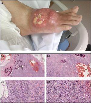 Osteosarcoma en dorso de pie derecho, en paciente con gota tofácea. A) Descripción macroscópica: placa de aspecto tumoral eritemato-violácea infiltrada de 6cm de diámetro máximo, compuesta de nódulos tumorales duros, de consistencia ósea, petrificados, y en superficie lesiones tumorales excrecentes y de base ligeramente pediculada de unos 3cm de diámetro. B) Descripción microscópica (hematoxilina eosina [HE]; de izquierda a derecha y de arriba a abajo: B1: H&E ×2; B2: H&E ×4; B3: H&E ×10; B4: H&E ×20). Osteosarcoma de alto grado, de tipo telangiectásico, con abundante formación de osteoide y espacios llenos de sangre sin revestimiento epitelial. A gran aumento se observan células de talla grande, con núcleos irregulares y pleomórficos, reconociéndose numerosas mitosis, muchas de ellas atípicas.
