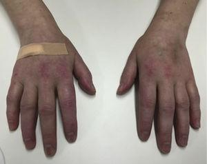 Photograph showing Gottron papules over the extensor surfaces of metacarpophalangeal joints of both hands.