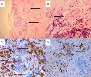 Biopsia de glándula lacrimal. Tinción hematoxilina-eosina: A) Fibrosis estoriforme y esclerosis estromal, infiltrado inflamatorio crónico (×10); B) Venas con paredes engrosadas con infiltración de sus paredes por células inflamatorias mononucleares causando obliteración de la luz. Tinción de inmunohistoquímica (×40). C) Extenso infiltrado de plasmocitos que expresan CD38 (×40 tinción DAB anti-CD38); D) Plasmocitos que expresan IgG4 (×40 tinción DAB anti-IgG4).