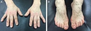 (A and B) Diffuse thickening of soft tissue and acral enlargement of both hands and feet.