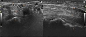 Ultrasound transverse (A) and longitudinal (B) image of the enlarged fascicular pattern of median nerve of right hand, area: 22mm2 (normal less than 12mm2).3 Power Doppler signal was absent. C, capitate&#59; FT, flexor tendons&#59; M, median nerve&#59; R, flexor retinaculum&#59; L, lunate.