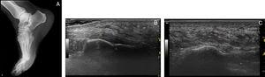 (A) Lateral right foot X-ray showing increased heel fat pad. (B) Longitudinal ultrasound image showing homogeneous Aquiles tendon and enthesis. (C) Longitudinal ultrasound image of plantar fascia insertion that shows homogeneous non thickened fascia and increased fat pad: 1.4cm (normal <0.39mm).5 F, Kager's fat&#59; C, calcaneous&#59; At, aquilles tendon&#59; Sc, subcutaneous tissue&#59; Fp, heel fat pad&#59; F, plantar fascia&#59; m, muscle.