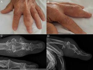 A y B) Tumoración multilobulada en la segunda falange del tercer dedo de la mano izquierda. C y D) Radiografía PA y lateral del tercer dedo de la mano izquierda; se visualiza una lesión lítica expansiva de gran tamaño, que insufla, adelgaza y destruye la cortical.