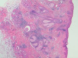 Imagen histológica de la biopsia cutánea. Se observa infiltrado linfohistiocitario intersticial en dermis superficial y profunda, con presencia de depósitos de mucina dispuestos alrededor de fibras de colágeno, correspondiendo histopatológicamente a una dermatitis intersticial granulomatosa.
