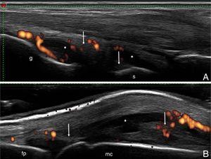 A) Carpo. Corte longitudinal dorsal. Distensión capsular a nivel de los recesos articulares radiocarpiano e intercarpiano, ambos con áreas de líquido sinovial (*) y áreas de proliferación sinovial (flecha), con incremento de la vascularización por Doppler de poder (grado 2). B) Articulación metacarpofalángica. Corte longitudinal dorsal. Distensión de la capsula articular con áreas de líquido sinovial (*) y áreas de proliferación sinovial (flecha), con incremento de la vascularización por Doppler de poder (grado 2). fp: falange proximal; g: grande; mc: metacarpiano; r: radio; s: semilunar.