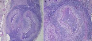 Biopsia: A) Ganglio linfático reemplazado por grandes granulomas de forma estelar (hematoxilina-eosina, ×2). B) Centro micro-abscedado con piocitos, rodeado por empalizada de histiocitos y por fuera linfocitos pequeños (hematoxilina-eosina, ×4).