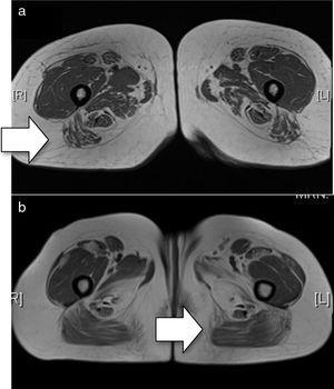 a) RM basal (secuencia T1). Se aprecia mínimo edema en extremo distal de ambos sartorios y en grácilis. Afectación de ambos compartimentos, en el compartimento anterior más afectados los vastos laterales y medios y en compartimento posterior, identificándose de manera general una mayor afectación posterior (flecha); b) RM posterior al tratamiento con rituximab (secuencia T1). Se aprecia una afectación bilateral y simétrica de ambos compartimentos objetivando atrofia muscular con depósitos de la grasa de forma difusa, en el compartimento anterior más afectados los vastos laterales y medios y en compartimento posterior los isquiotibiales, con predominio de la afectación en el compartimento posterior (flecha).